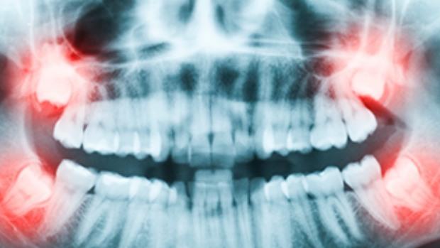 Cirugía Oral Granada