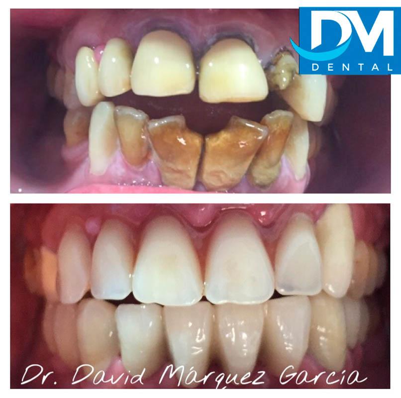 Casos Clinicos Dentales Granada