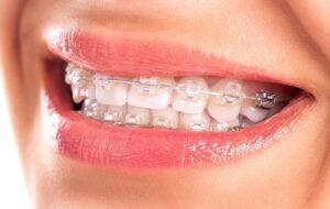 Ortodoncia. Por salud dental y estética.