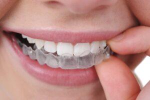 Invisaling dentista Granada