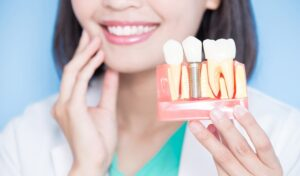 Mantenimiento de implantes dentales