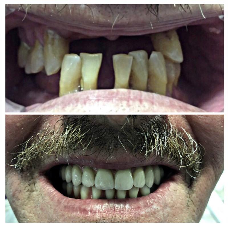 Implantes-dentales Granada